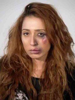 La donna con l'occhio nero